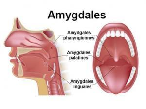 amygdales eviasis